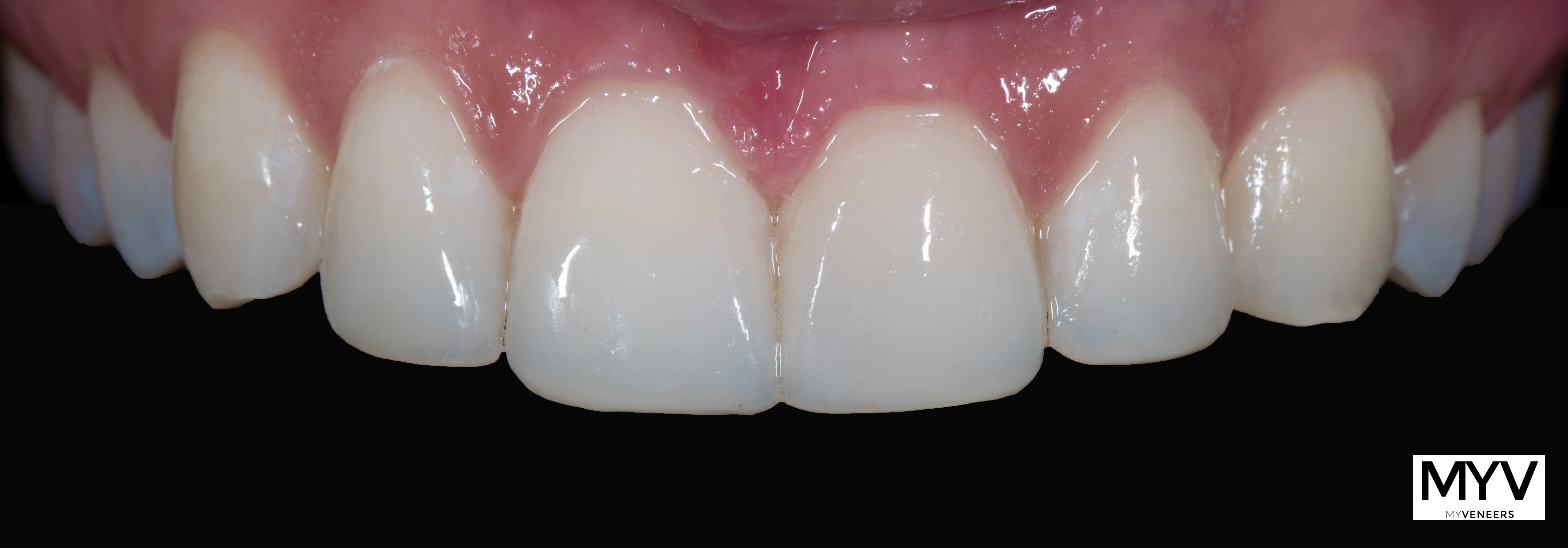 Veneers nach 2 Monaten in situ (intraoral und en face)